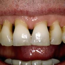 Unsightly Gingival Tissue