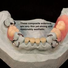 Aesthetic and very strong, Dental Composite is a great way to fill in tight occlusions or open bites as in the very thin anteriors of this case. Placed over the prepared metal base, Composite can be added, reduced or repaired in the lab or chair side by the dentist.