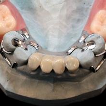 Dental Composite is a great way to fill in tight occlusions or open bites as in the very thin anteriors of this case. Placed over the prepared metal base, Composite can be added, reduced or repaired in the lab or chair side by the dentist.