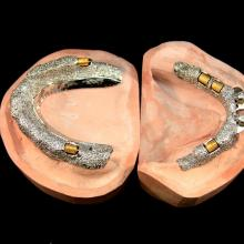 Upper and Lower Hader Clip retained denture bases