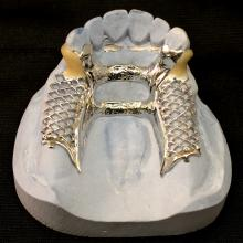 Small Anterior Double Palatal Strap with Resin Clasps