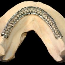 Embedded Cast Mesh to Strengthen a Lower Denture. This is a relatively inexpensive way to make a denture incredibly strong.