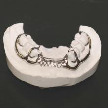 Mandibular traditional Buccal Bar 1