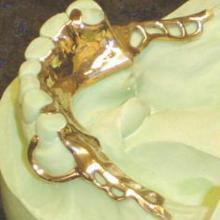 Gold mandibular Partial Frame