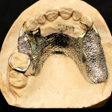 This patient was so closed down occlusally that our only choice was to place metal directly on the tissue and create bead type retention for acrylic build up teeth and some composite. The end result was very successful. We actually use coarse salt because it's more effective than round beads.