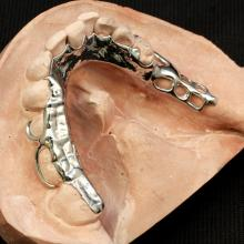 Mandibular Bite Stabilizer. The bite was re-established in the casting only on the teeth that were out of occlusion.