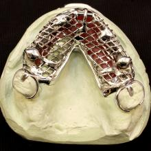 Implant Supported partial with Locators in Bi-cuspid areas and a hader clip over a fixed cast bar in the 8-9 areas.