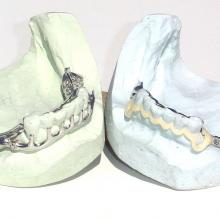 A more aesthetic solution for Full buccal coverage
