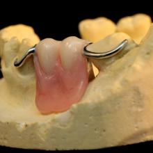 While we do not usually recommend metal unilaterals partials, they are, and will likely continue to be a part of the removable lab experience. Problematic and arguably dangerous, they are often under- retentive, unstable, and not particularly hygienic.