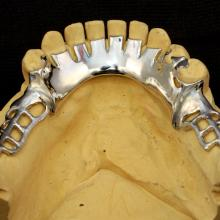 "The ""cuts in the Smooth Plate ore there to eliminate shine from Buccal view between the teeth."